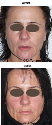 photo acide hyaluronique cernes et pommettes, botox