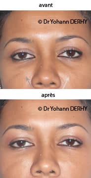 photos cerne acide hyaluronique