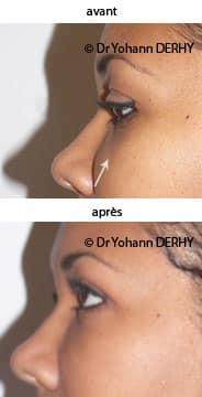 photos cerne creux acide hyaluronique