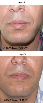 photo lipofilling cicatrice visage