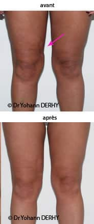 photo lipofilling cicatrice cuisse