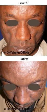 photos lipofilling pommette, lipofilling joues, sillons nasogéniens