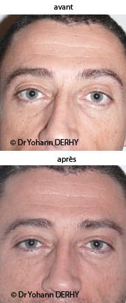 photos lipofilling sourcils