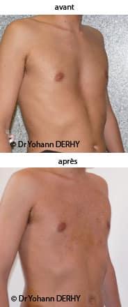 photos lipofilling de thorax en entonnoir