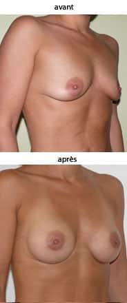 photo augmentation mammaire par prothèse ronde