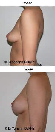 augmentation mammaire prothese anatomique