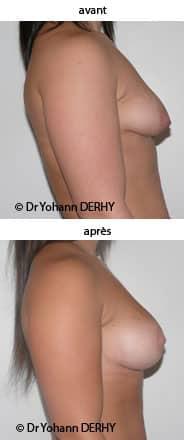 photo augmentation mammaire par prothese et round-block