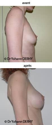 photo augmentation mammaire par prothèse anatomique