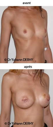 augmentation mammaire : implant anatomique