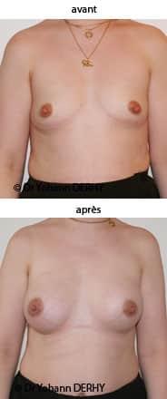 augmentation mammaire : implant rond