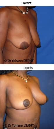 photo ptose mammaire