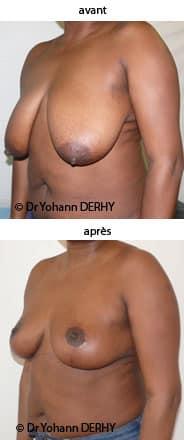 cicatrices ptose mammaire photos