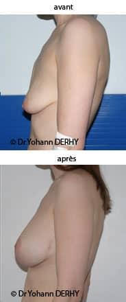 photo prothese mammaire mastopexie ptose