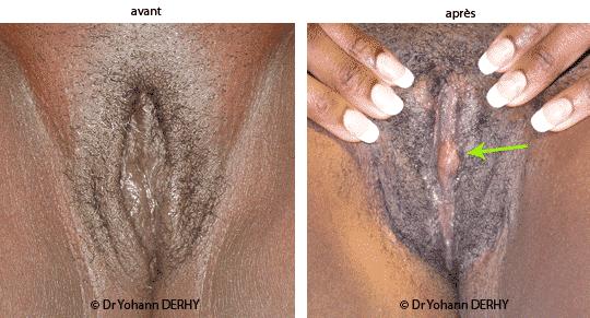 Comment apaiser un vagin douloureux: 14 tapes
