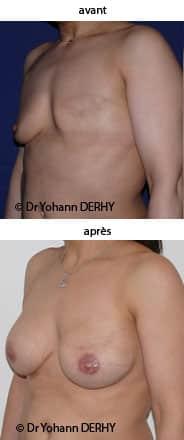 photo reconstruction mammaire prothèse