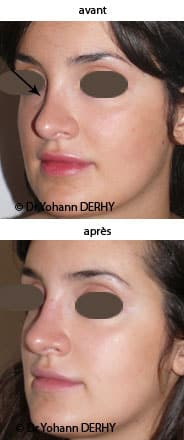 photo rhinoplastie médicale par acide hyaluronique