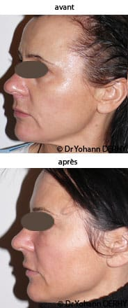 photos botox (toxine botulique) sourcil