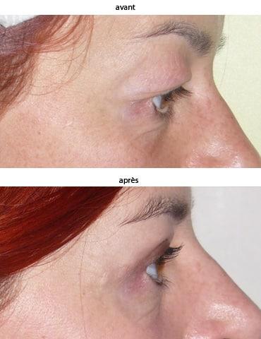 photos blépharoplastie avant après
