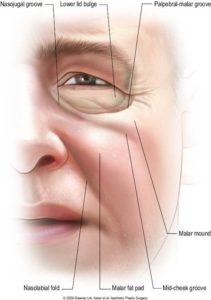 vieillissement-pommette-resultat