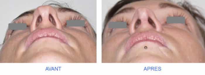 rhinoplastie de la pointe : vue basale