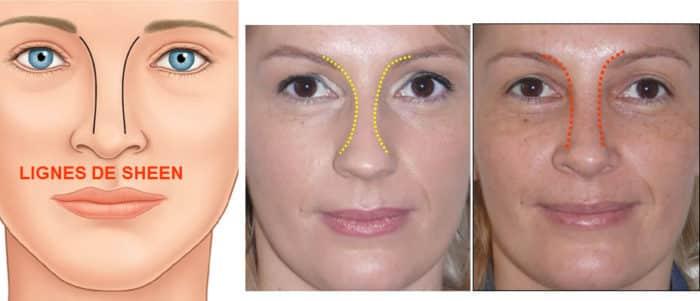 lignes orbito-nasales de Sheen