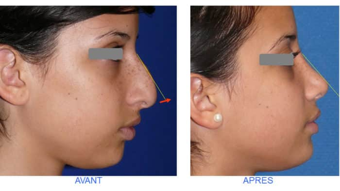 photo rhinoplastie d'avancement de la pointe du nez