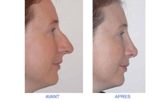 photo de rhinoplastie de la pointe pour recul de la pointe du nez