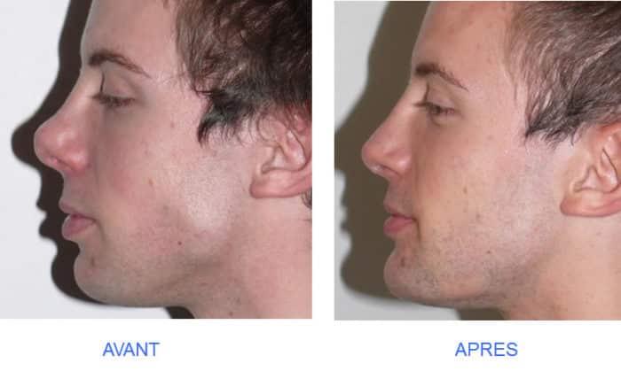 photo de rhinoplastie de pointe du nez trop relevée