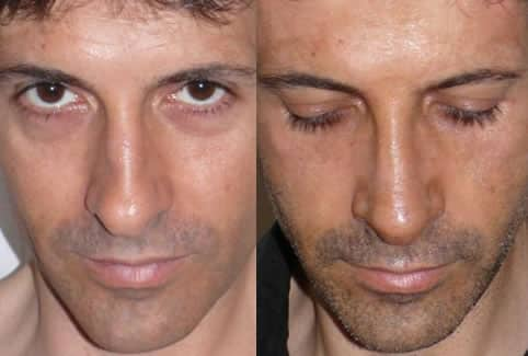 photo avant apres rhinoplastie avec spreader graft