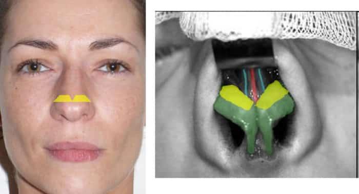 rhinoplastie de la pointe : excès cartilage alaire