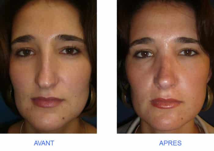 photo de rhinoplastie de pointe tombante