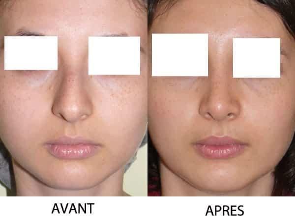 sutures des cartilages de la pointe du nez