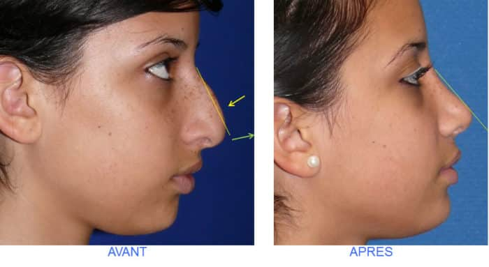 rhinoplastie relative de la pointe du nez et d'une bosse nasale