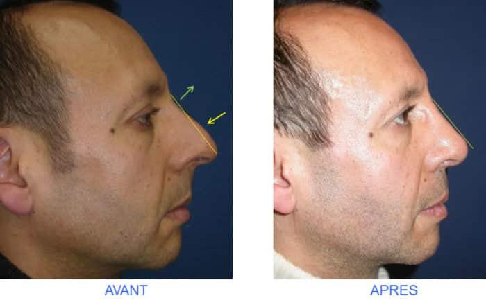 rhinoplastie relative pour racine du nez creuse et bosse nasale