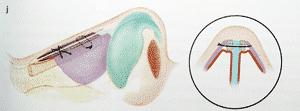 spreader graft pour une rhinoplastie naturelle avec lignes de Sheen