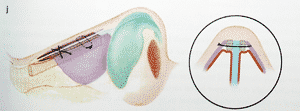 spreader graft pour rhinoplastie de la bosse nasale