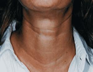 photos botox au niveau du cou pour cordes cervicales