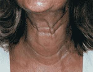 photos botox au niveau du cou pour cordes platysmales
