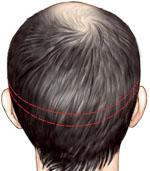 prélèvement de la greffe de cheveu