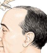 implantation des greffe de cheveux
