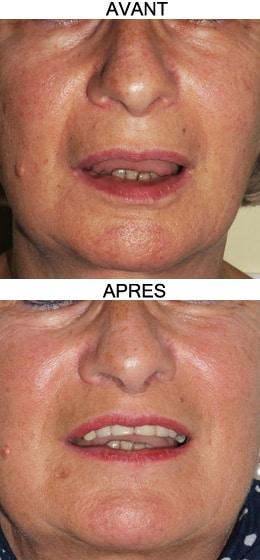 Photos de Lip lift : lifting de la lèvre supérieure