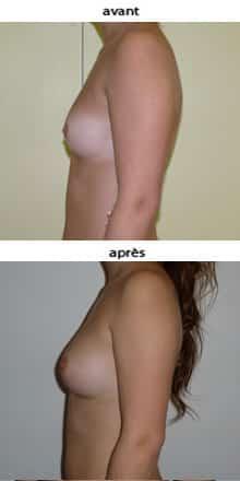 photo lipofilling mammaire