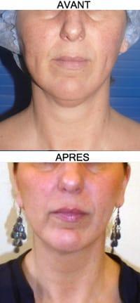 photos liposuccion du double menton