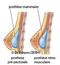 prothèse mammaire : différentes loges