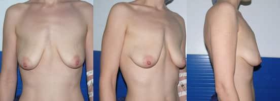 ptose mammaire : mastopexie + prothèse mammaire