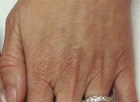 rajeunissement des mains par radiesse