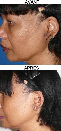 reconstruction du lobe d'oreille