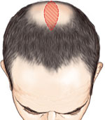 reduction de tonsure