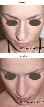 photo rhinoplastie pointe