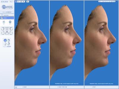 consultation pour rhinoplastie avec simulation 3D